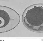 Science Art: <i>Diagram to show relations in</i> ovum in ovo, 1899.