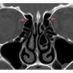 Science Art: <i>Figure Showing Anterior Ethmoidal Artery</i>, 2013.