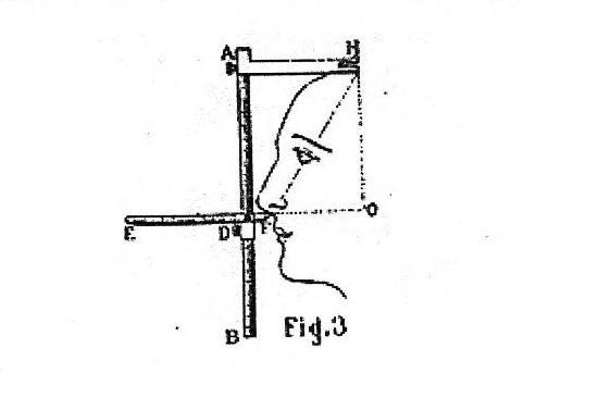 Fig 3 ThePocketCephalometer_LeBon