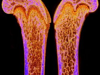Scientific illustration of bones on the inside, from a CT scan.